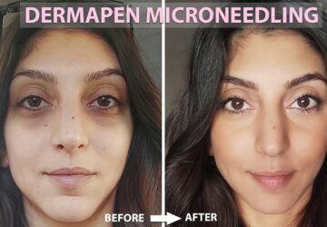 Dermapen Microneedling Before And After